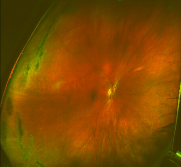 Calendar Wallpaper With Clock : Optomap retinal scan orland park il vision source
