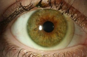 Close up of eye with scleral lenses